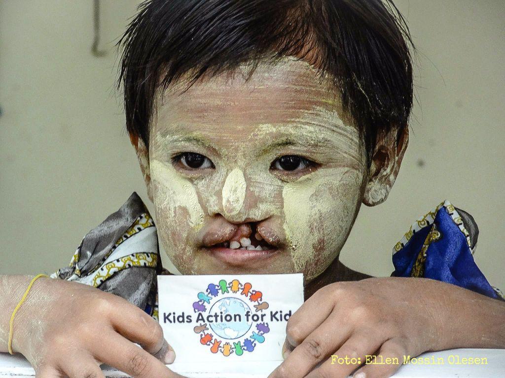 Jente med klassisk Myanmar maling_med foto_EMO